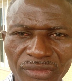 Noah Ichaba, Diplomat beaten to a pulp by Equitorial Guinea police officer (Photo Credit: Scoop)