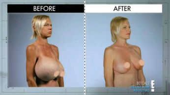 Before and After Photos of Dee Stein who said she looks like a walking boobs after botched boob implants she had 20 years ago ruptured. (Photo Credit: E! Entertainment/XPOSUREPHOTOS.COM)