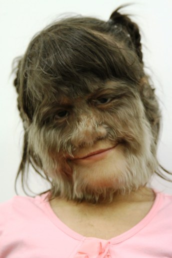Supatra Sasuphan is currently the world's hairiest girl in the woro Guinness World Book of Records. (Photo Credit: Telegraph.co.Uk)