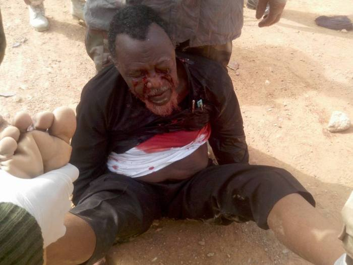 Islamic Movement leader Ibrahim Zakzaky after he was shot by Nigerian soldiers in a raid on his house | Herald