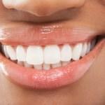 teeth clean yellow