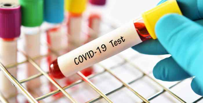 COVID-19 TEST, coronavirus