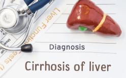 cirrhosis from hepatitis