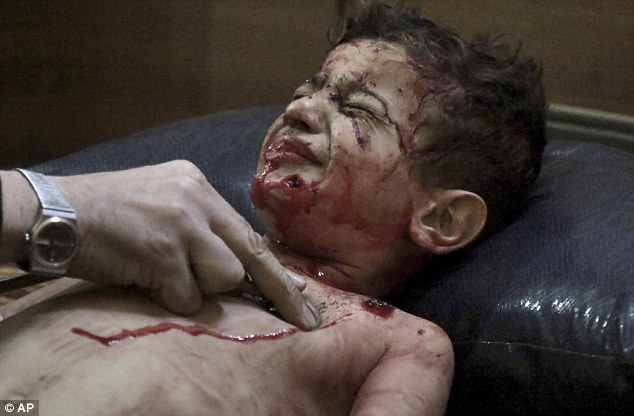 Boy winces as he recieves treatment at a medical facility in opposition controlled suburb in Damascus. Click to enlarge