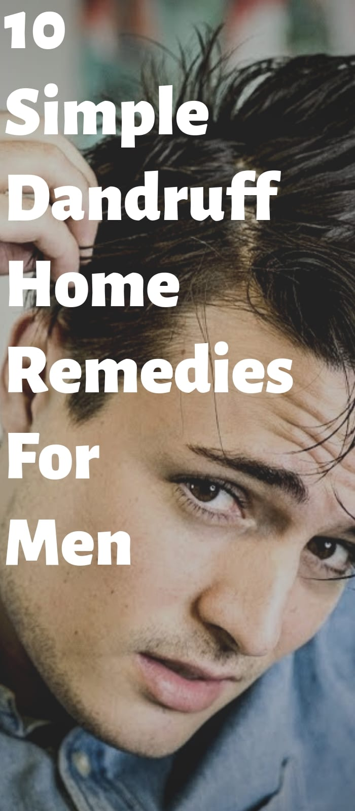 10 Easy Dandruff Remedies For Men!