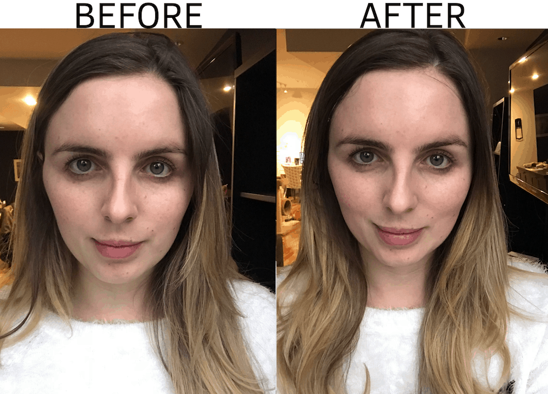 Silk'n Titan Skin Tightening Treatment | 10 Week Update - Silk'n Titan Skin Tightening Treatment by Vancouver beauty blogger The Urban Umbrella