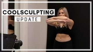 Coolsculpting Update!