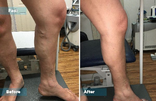 Fadil - Varicose Vein Treatment