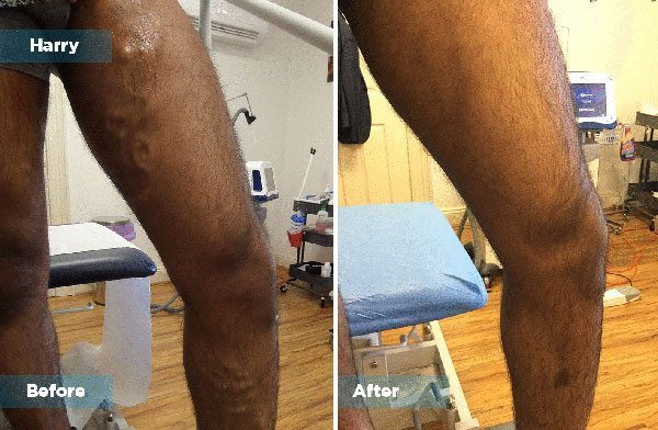 Harry - Varicose Vein Treatment