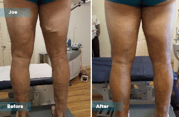 Joe - Varicose Vein Treatment