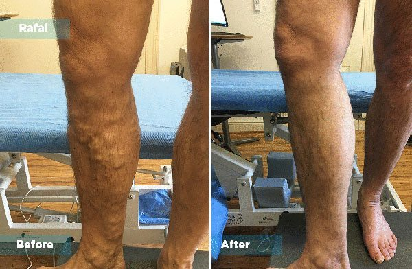 Rafal - Varicose Vein Treatment