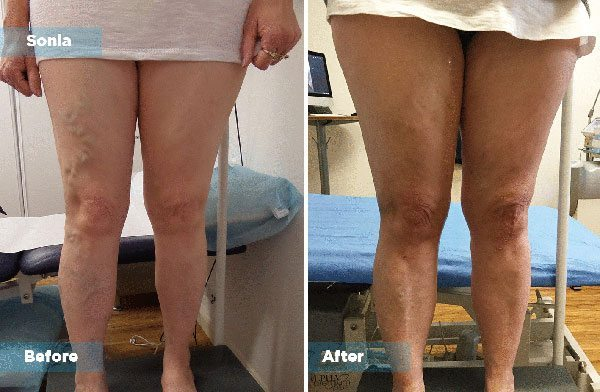 Sonia - Varicose Vein Treatment