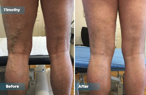 Timothy - Varicose Vein Treatment