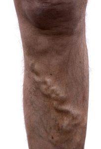 Men suffer from varicose veins as much as women