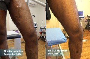 Male patient example treating varicose veins with laser at The Vein Institute