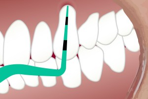 How To Prevent & Treat Gingivitis