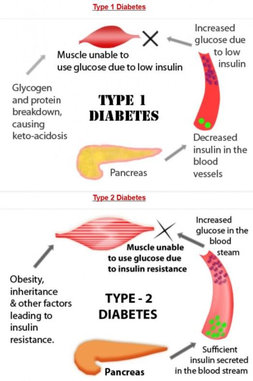 Diabete di Tipo 1 e 2.