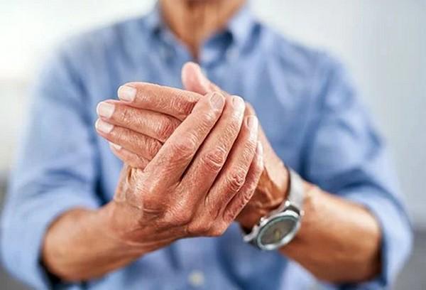 How to treat arthritis? | Health