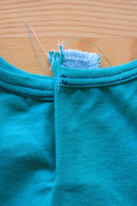 10-Button Placket
