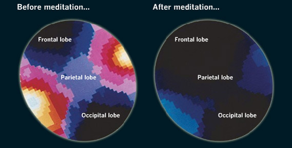 MRI images before and after 30 minutes of meditation:  Source: Psychiatry Research Neuroimaging