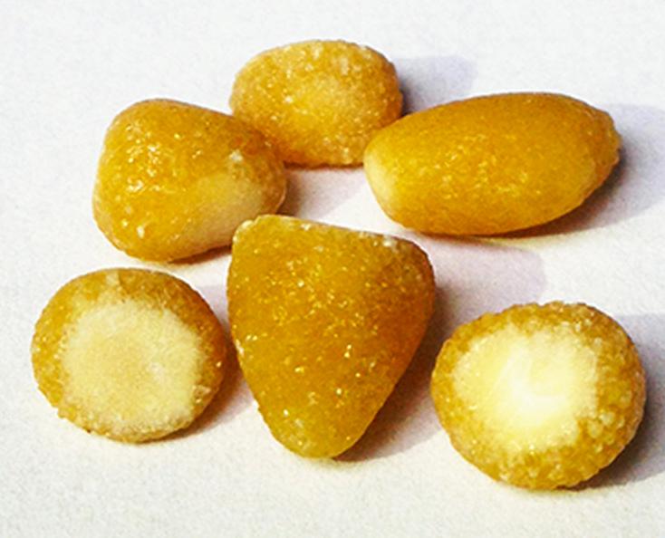 Different Kidney Stones