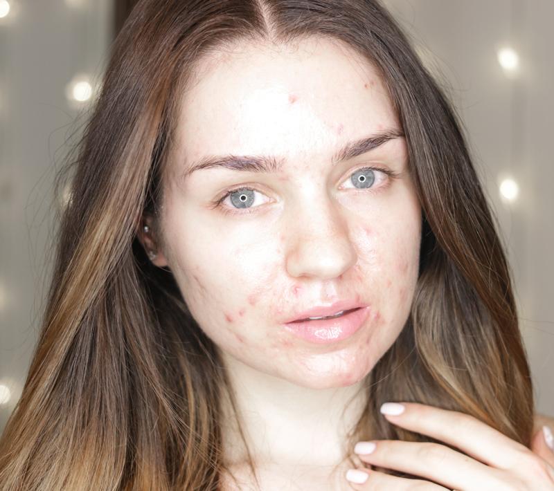 skin-before-going-on-accutane