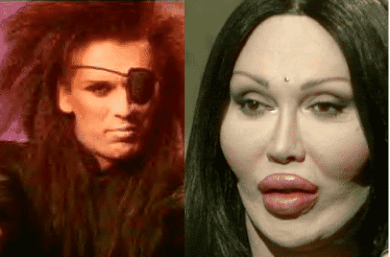 Plastic Surgery Fails and The Complete Transformation of Pete Burns