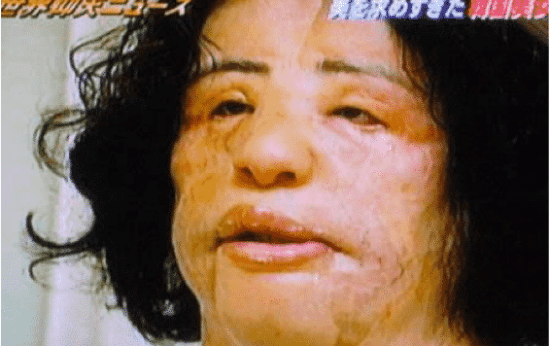 Plastic Surgery Disasters and The Cooking Oil Surgery