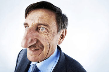 Strangest Human Body Parts and The Longest Human Nose