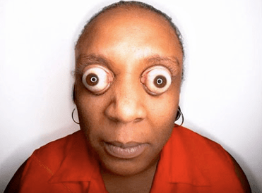 Strangest Human Body Parts and The Popping Eyes