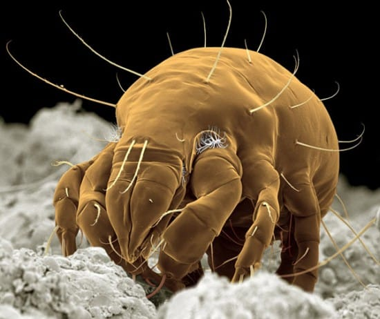 3 Skin Mites That Will Raise Your Paranoia1