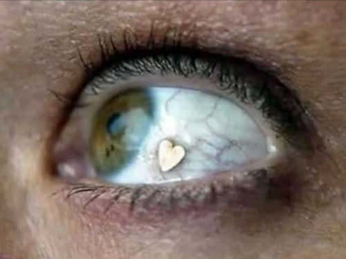 extraocular implant extreme body modifications