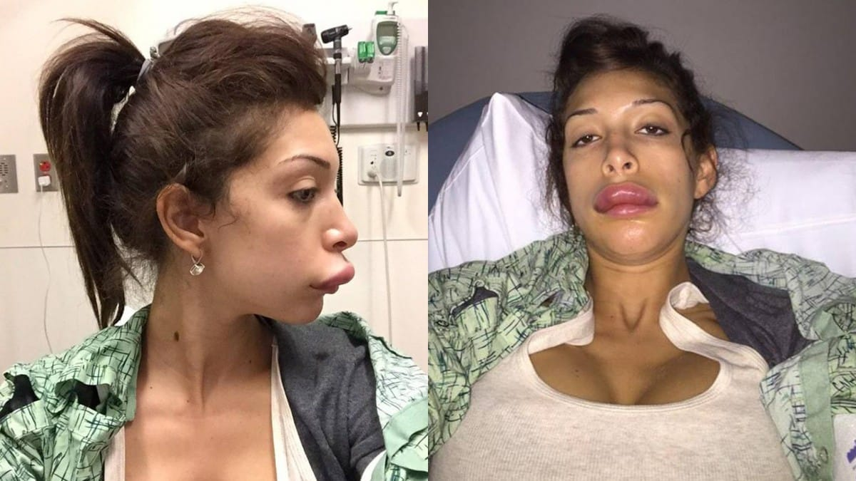 Famous Plastic Surgeries Gone Wrong 2018  This Blog Rules-8008