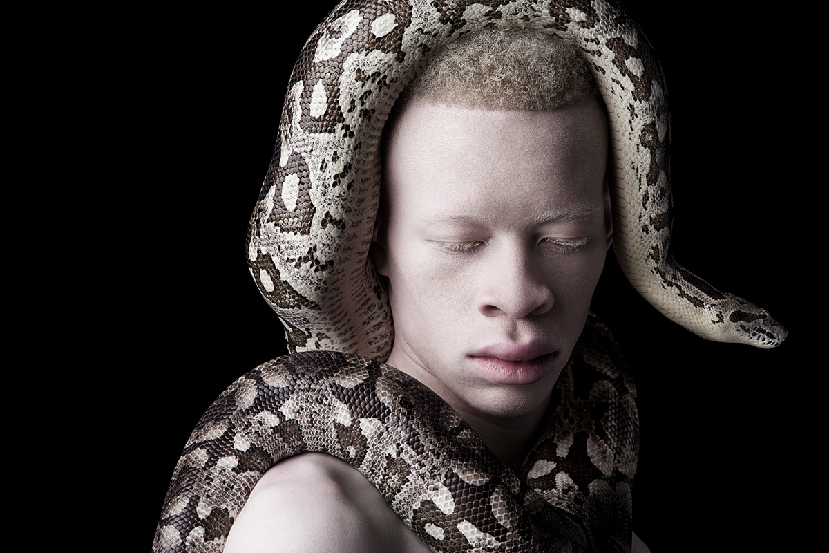 Models with Albinism Challenge Standards of Beauty 4