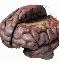 diagram of brain and pain [ 1500 x 1001 Pixel ]