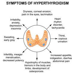 thyroid problems [ 1500 x 1000 Pixel ]