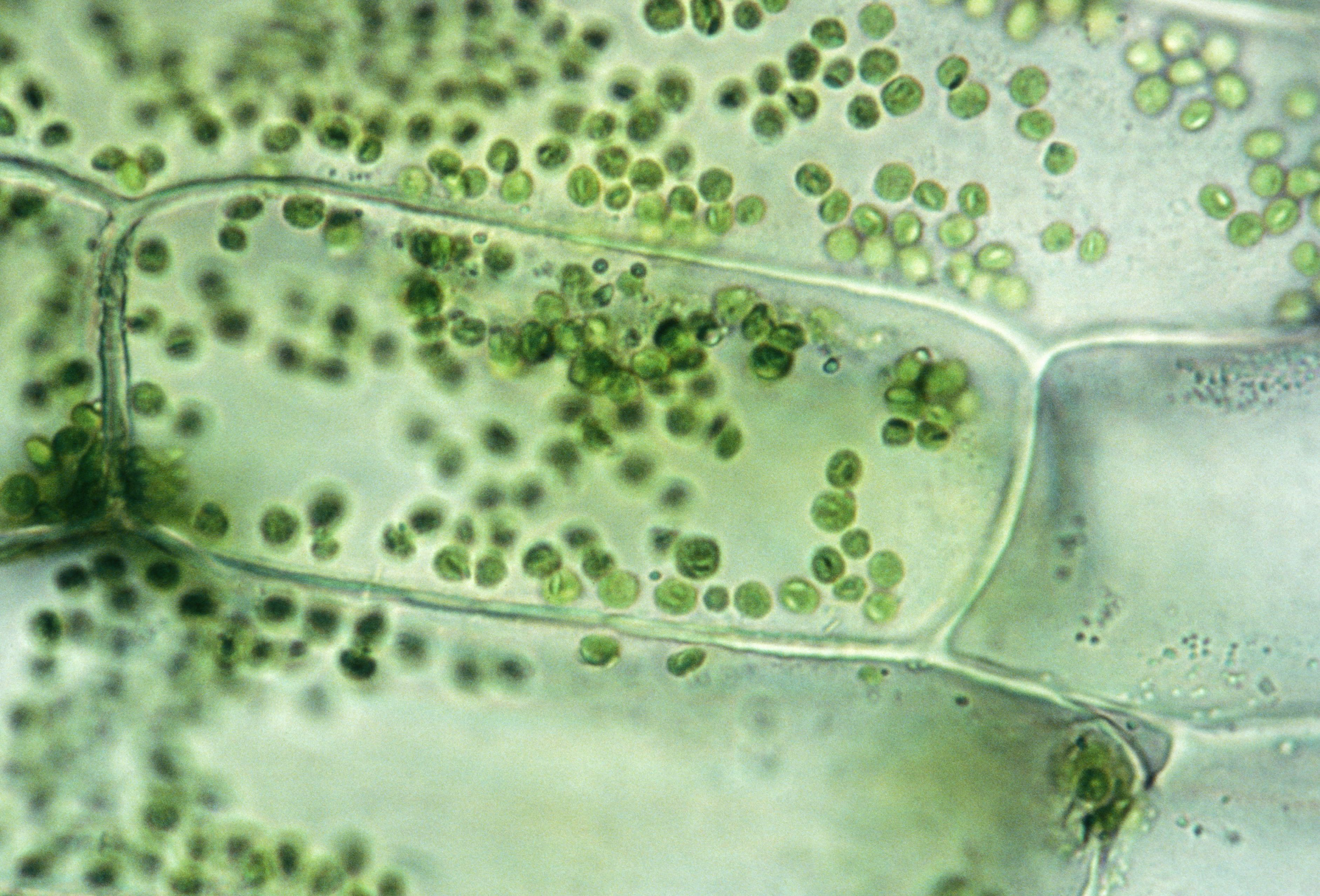 elodea leaf cell diagram girl power tattoo quotes learn about plant types and organelles