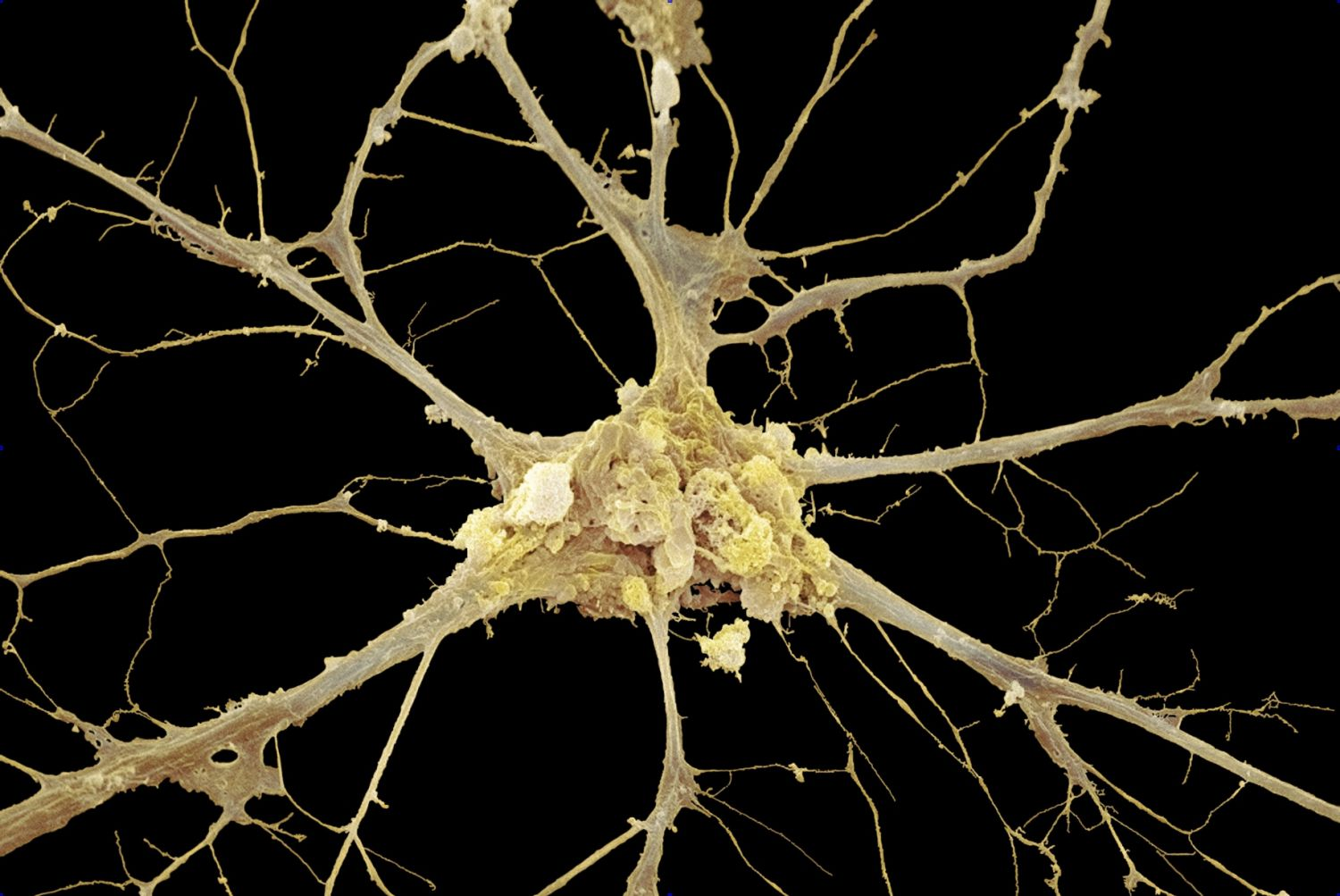 Nervous Tissue Neurons And Glial Cells