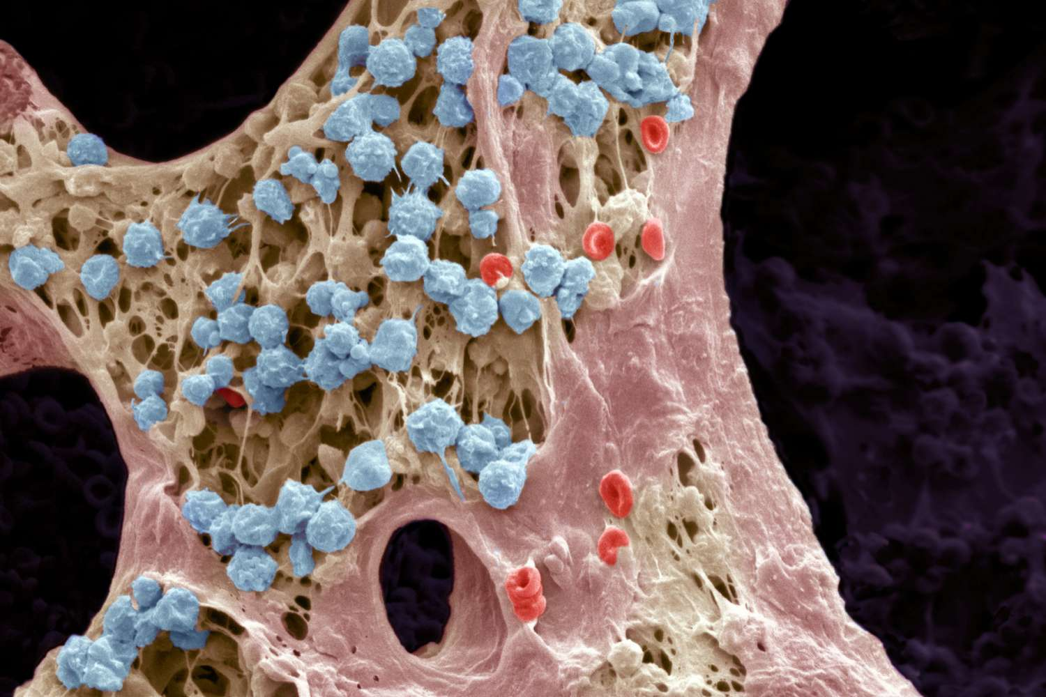 hight resolution of bone marrow scanning electron micrograph sem bone marrow is where blood cell production takes place