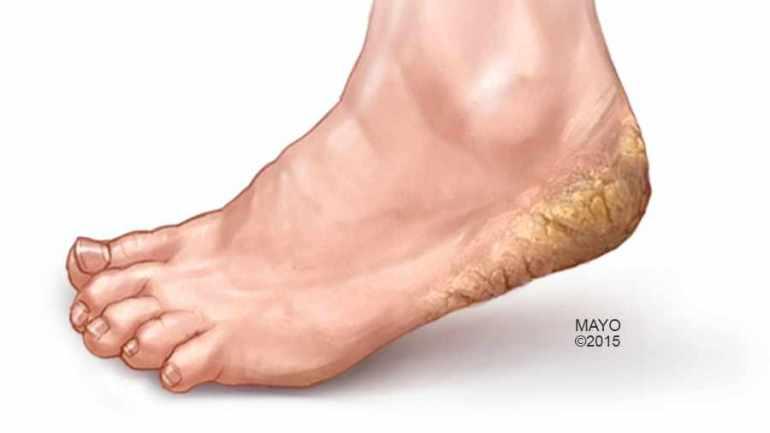 How to Heal Cracks In Heels