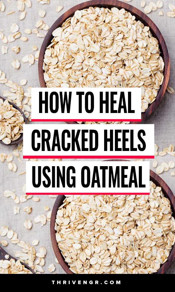 How to Heal Cracks In Heels using Oatmeal