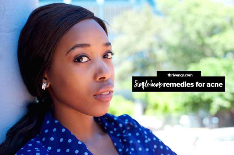 home remedies for acne (pimples)
