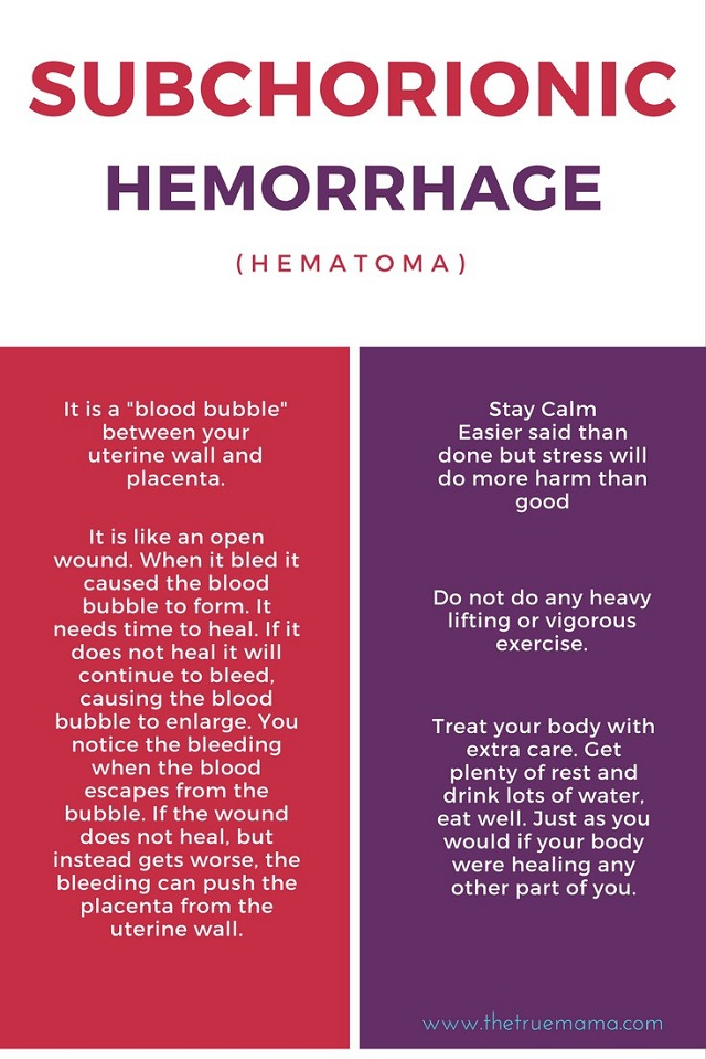 10 Facts About Subchorionic Hematoma