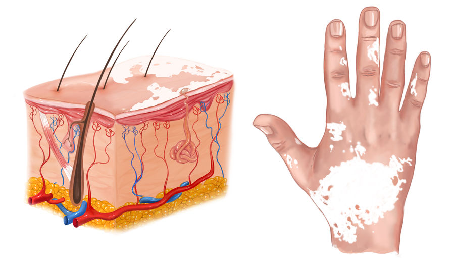 medical illustration of the effects of vitiligo