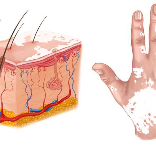 medical illustration of the effects of vitiligo