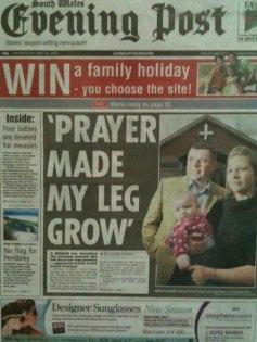 Prayer made my leg grow