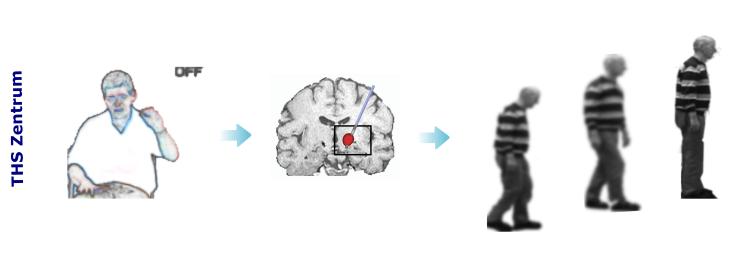 Tiefe Hirnstimulation, deep brain stimulation, Hirnschrittmacher