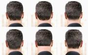 hair terminology