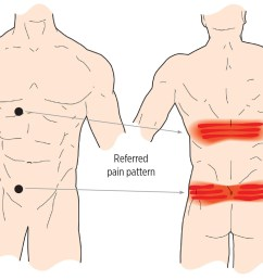 muscle knots in lower back [ 1200 x 820 Pixel ]