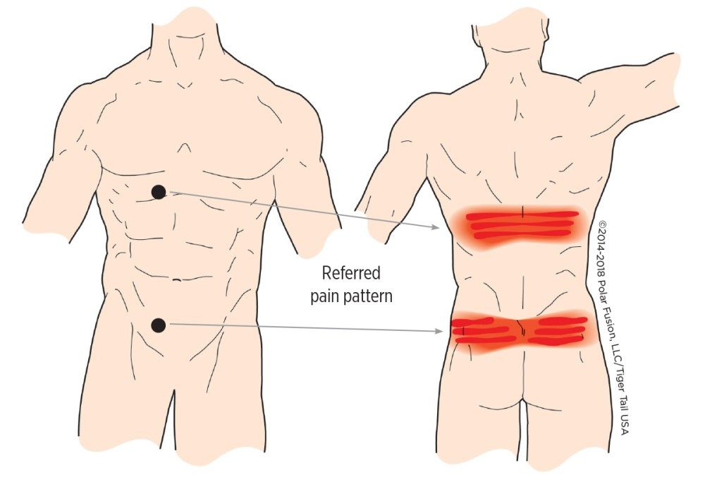 medium resolution of muscle knots in lower back